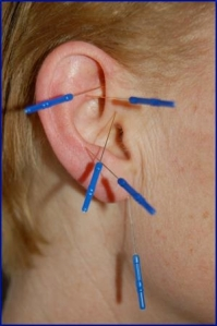 Auricular Acupuncture Needles in an Ear